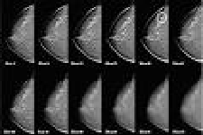 Tomosynthesis